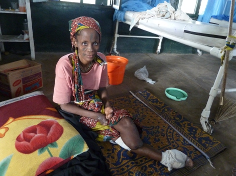 Binta, a woman severely disabled by leprosy, who is receiving help from Chanchaga Orthopaedic Workshop  in Nigeria.