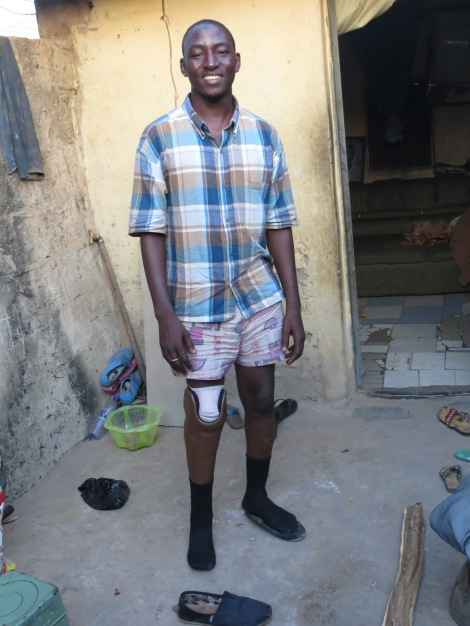 Yousif, whose life has been transformed by an artificial leg.