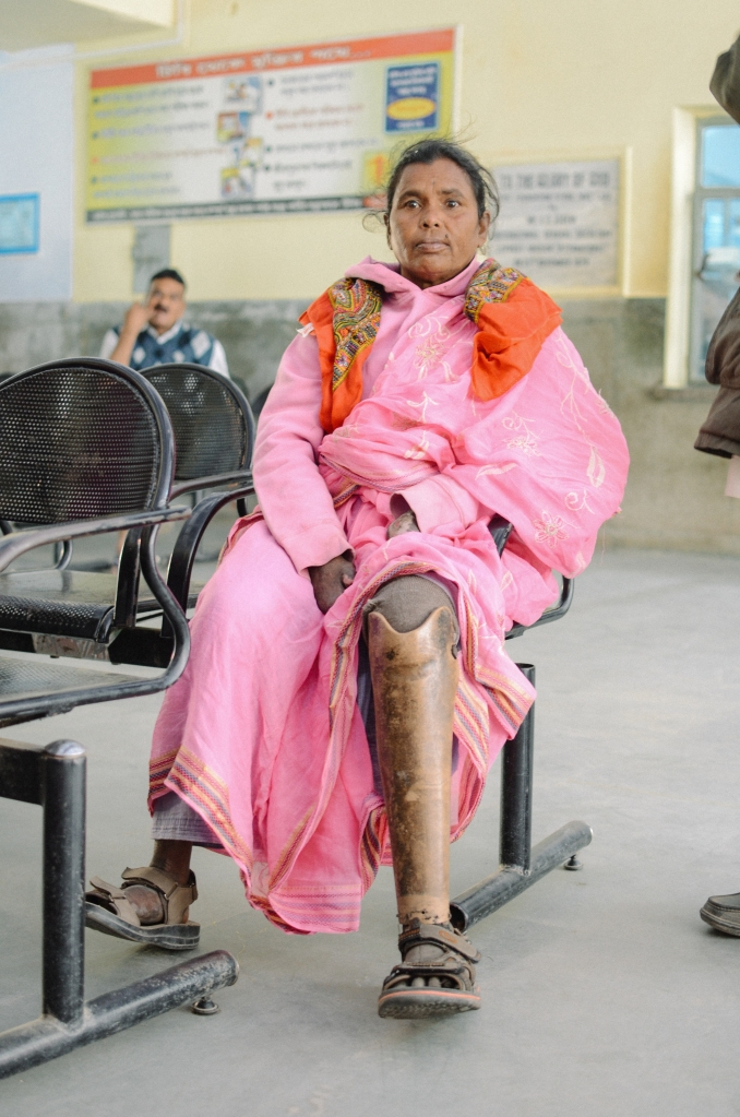 Kushmi travelled for five hours to get to Purulia with an open wound on her leg.