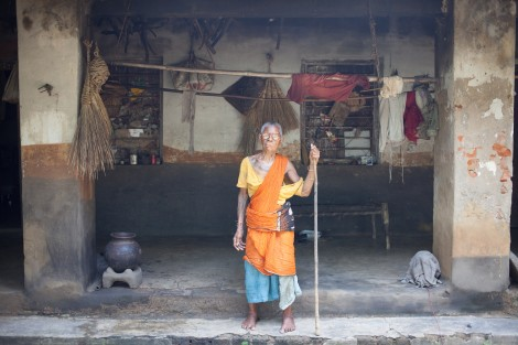 A resident of Purulia leprosy community