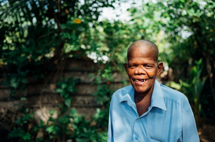 Kanagarasa, from Sri Lanka, has lived with the effects of leprosy for many years.